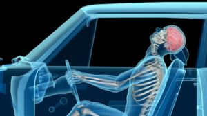 chiropractor after car accident